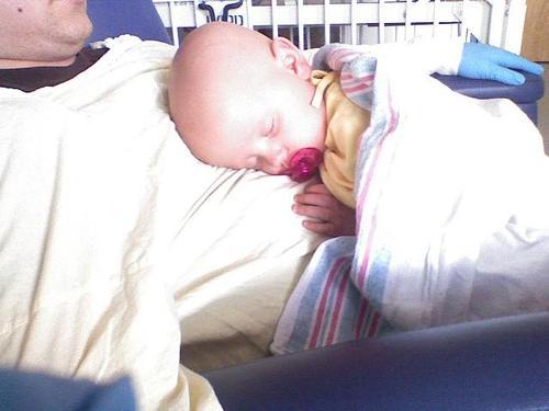 Beautiful, Sleeping Baby After Transplant